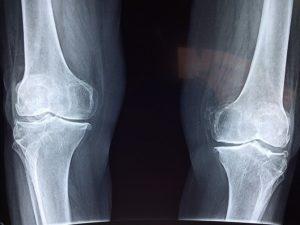 Radiographie d'un genou