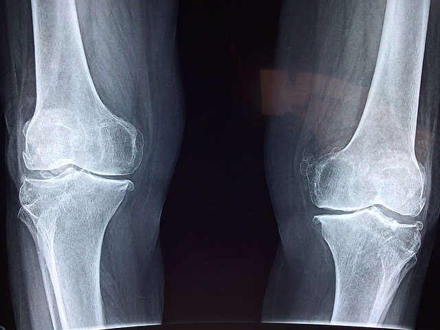 Arthrose du genou : l'ostéopathie peut-elle aider ?